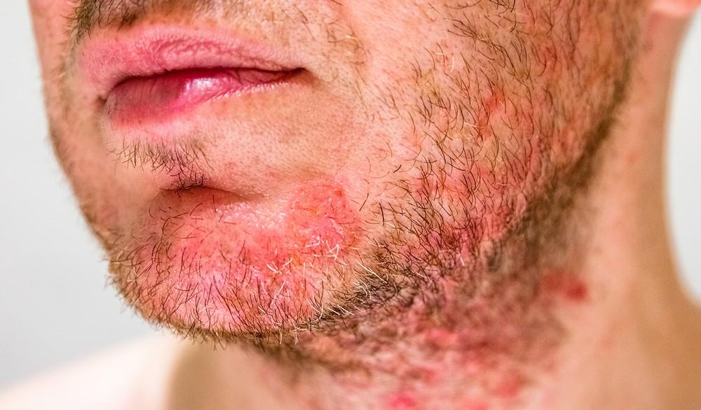 Reconnaitre quelques types de dermatoses